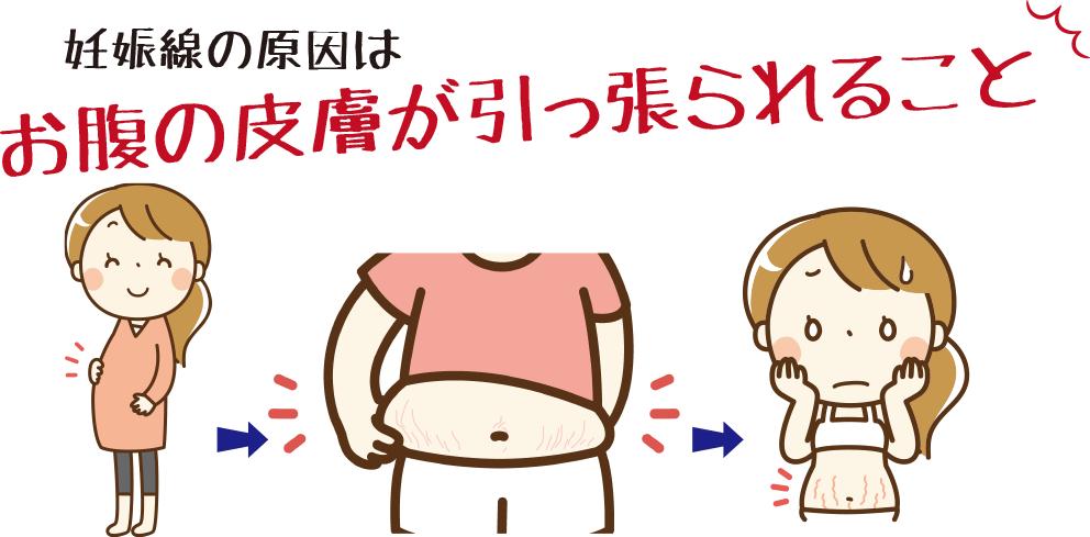 妊娠線の原因は、皮膚が引っ張られること